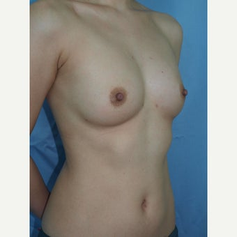 27 year old woman treated with Breast Fat Transfer after 2179980