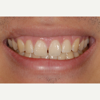 18-24 year old man treated with Dental Bonding for Diastema Closurel before 3549278
