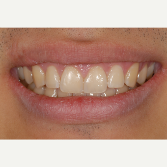 18-24 year old man treated with Dental Bonding for Diastema Closurel after 3549278
