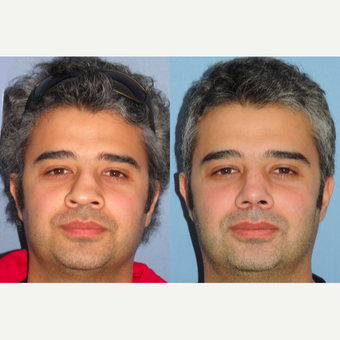 35-44 year old man treated with Revision Rhinoplasty before 3522749
