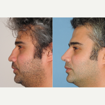 35-44 year old man treated with Revision Rhinoplasty after 3522749