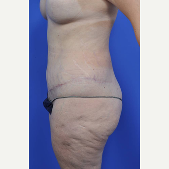 45-54 year old woman treated with Body Lift after 3450485