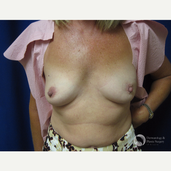 45-54 year old woman treated with Breast Reconstruction before 3325418