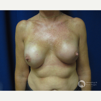 45-54 year old woman treated with Breast Reconstruction after 3325418