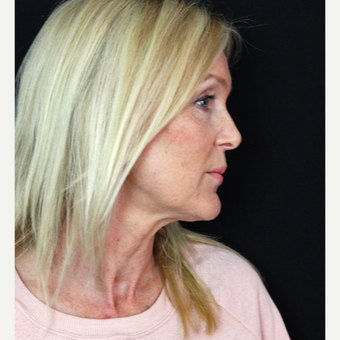 45-54 year old woman treated with Facelift before 3498638