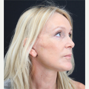 45-54 year old woman treated with Facelift after 3498638