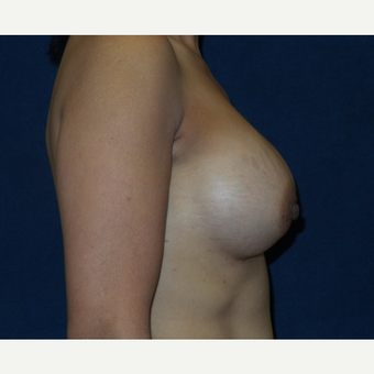 45-54 year old woman treated with Breast Implants after 3454897