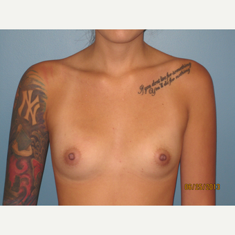 18-24 year old woman treated with Breast Augmentation before 3736667