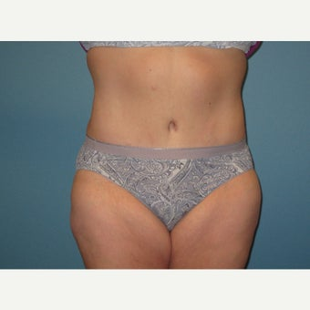 45-54 year old woman treated with Tummy Tuck after 1861463