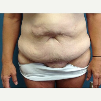 45-54 year old woman treated with Tummy Tuck before 1861463