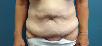 45-54 year old woman treated with Tummy Tuck 1861463