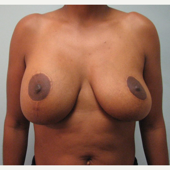 Breast Implant Removal combined with a breast lift in 43 year old patient before 3780950