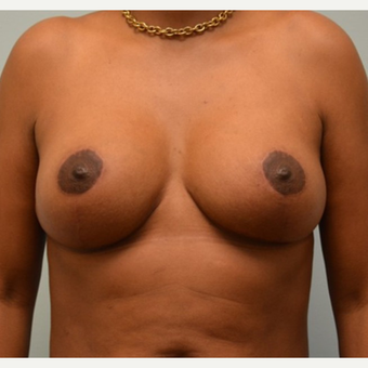 Breast Implant Removal combined with a breast lift in 43 year old patient after 3780950