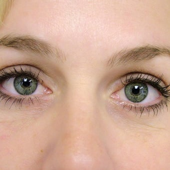 25-34 year old woman treated with Eyelid Surgery after 2058542