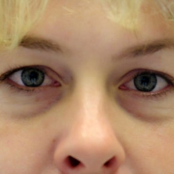 25-34 year old woman treated with Eyelid Surgery before 2058542