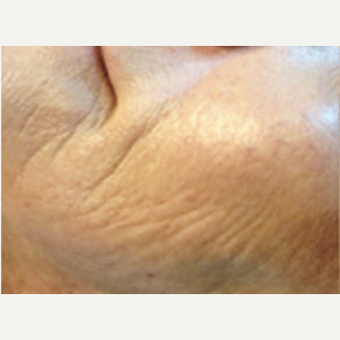 25-34 year old woman treated with Microneedling before 2833817