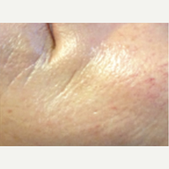 25-34 year old woman treated with Microneedling after 2833817