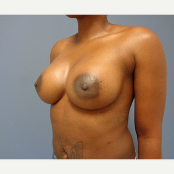 35-44 year old woman treated with Breast Augmentation after 3493478