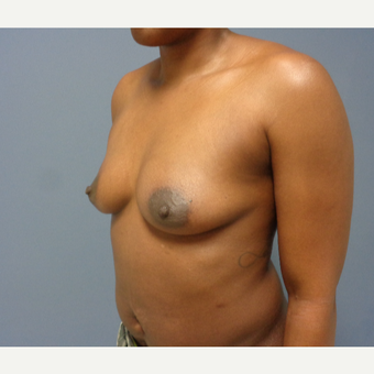 35-44 year old woman treated with Breast Augmentation before 3493478