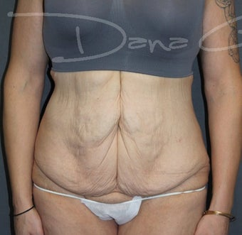 45-54 year old woman treated with Tummy Tuck before 3364684