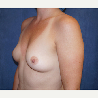 25-34 year old woman treated with Breast Augmentation before 3703564