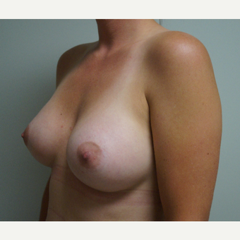 25-34 year old woman treated with Breast Augmentation after 3703564