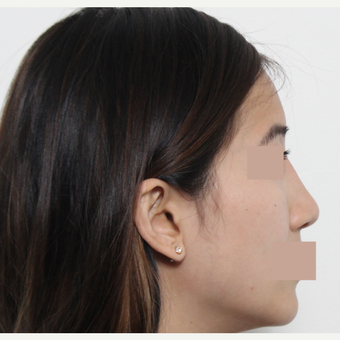 25-34 year old woman treated with Rhinoplasty after 3366488