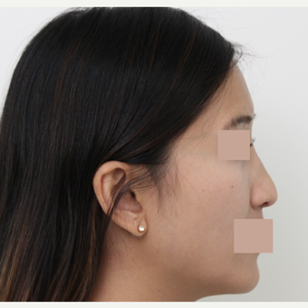 25-34 year old woman treated with Rhinoplasty before 3366488