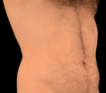 25-34 year old man treated with Liposculpture before 1602649