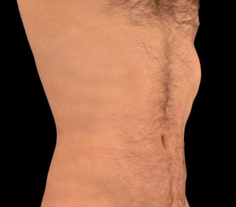 25-34 year old man treated with Liposculpture after 1602649