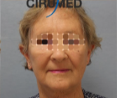 facelift with fatgrafting after 3053587