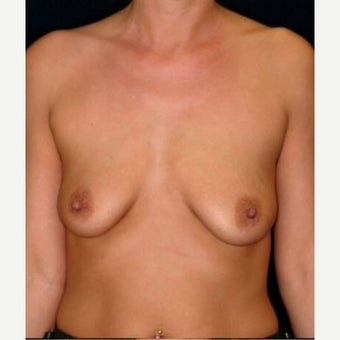 Benelli Mastopexy with Implants in a 36-year-old;  Benelli Augmentation Mastopexy before 1551023