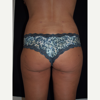 35-44 year old woman treated with Brazilian Butt Lift after 3082331