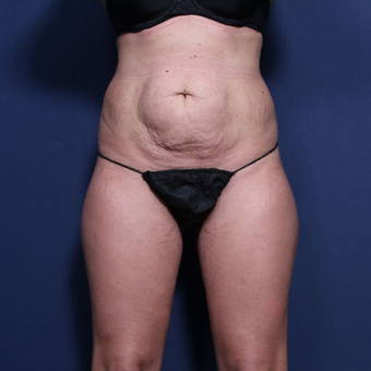 25-34 year old woman treated with Tummy Tuck (view 1 of 2) before 3372163
