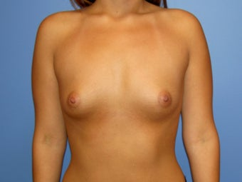 Before and After Breast Augmentation before 65305