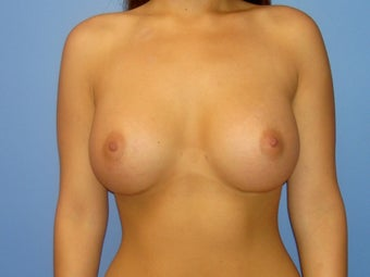 Before and After Breast Augmentation after 65305