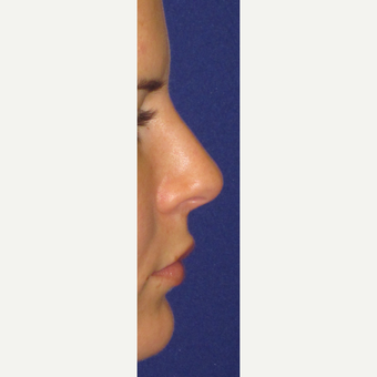 Non Surgical Nose Job after 3084730