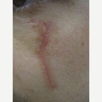18-24 year old man treated with Scars Treatment before 2114788