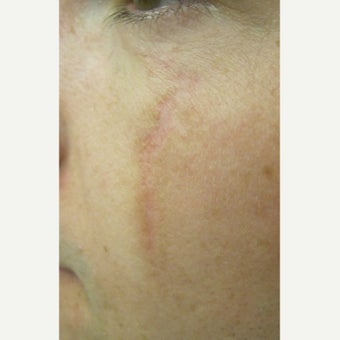 18-24 year old man treated with Scars Treatment after 2114788