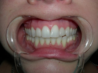 Dental veneer to correct small misaligned front teeth after 700796