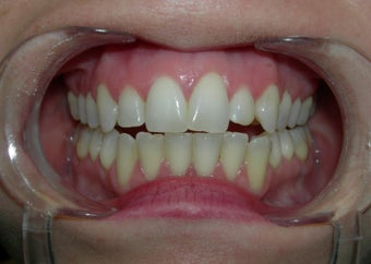 Dental veneer to correct small misaligned front teeth before 700796