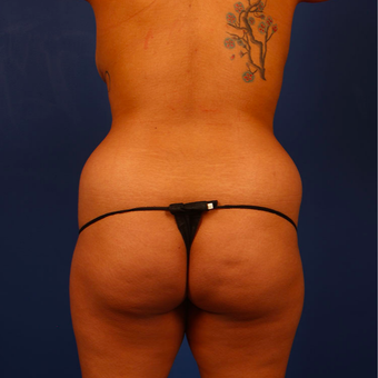 25 year old woman treated with Fat Transfer to the butt or Brazilian Butt lift before 3296793