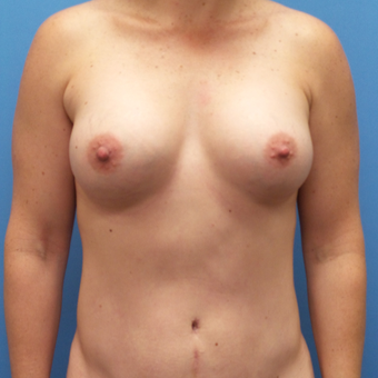 Breast Augmentation after 3338468