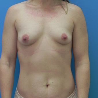 Breast Augmentation before 3338468