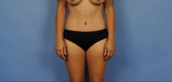 25-34 year old woman treated with Tummy Tuck after 3781676