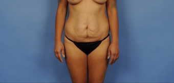 25-34 year old woman treated with Tummy Tuck before 3781676