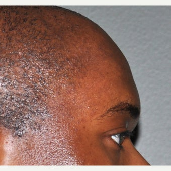 25-34 year old man treated with Forehead Augmentation after 2452909