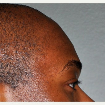 25-34 year old man treated with Forehead Augmentation before 2452909