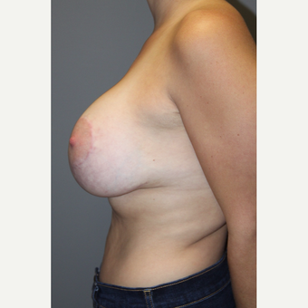 25-34 year old man treated with Breast Implants after 3129106