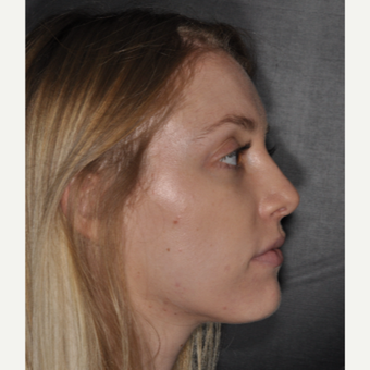 18-24 year old woman treated with Nose Surgery 1 yer post-op after 3499845